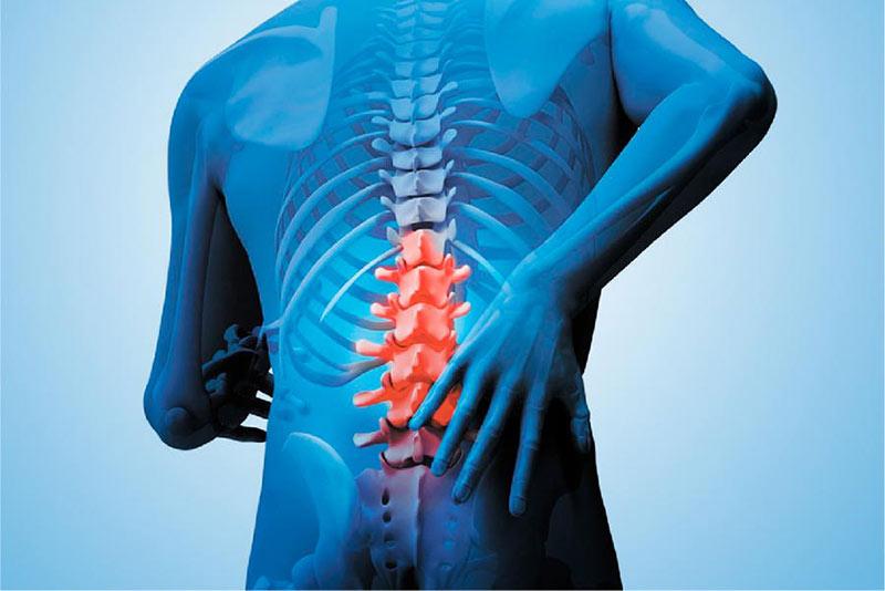 prevenir dolor en la columna